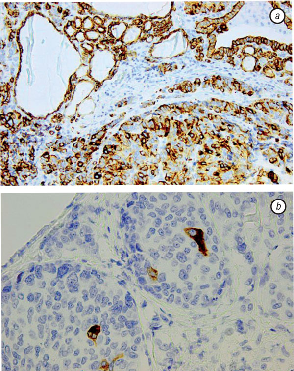 2 THYROID METASTASES FROM A BREAST CANCER DIAGNOSED BY FINE NEEDLE ASPIRATION BIOPSY. CASE REPORT AND OVERVIEW OF THE LITERATURE