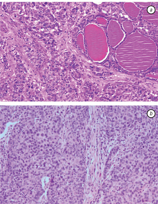 4 THYROID METASTASES FROM A BREAST CANCER DIAGNOSED BY FINE NEEDLE ASPIRATION BIOPSY. CASE REPORT AND OVERVIEW OF THE LITERATURE