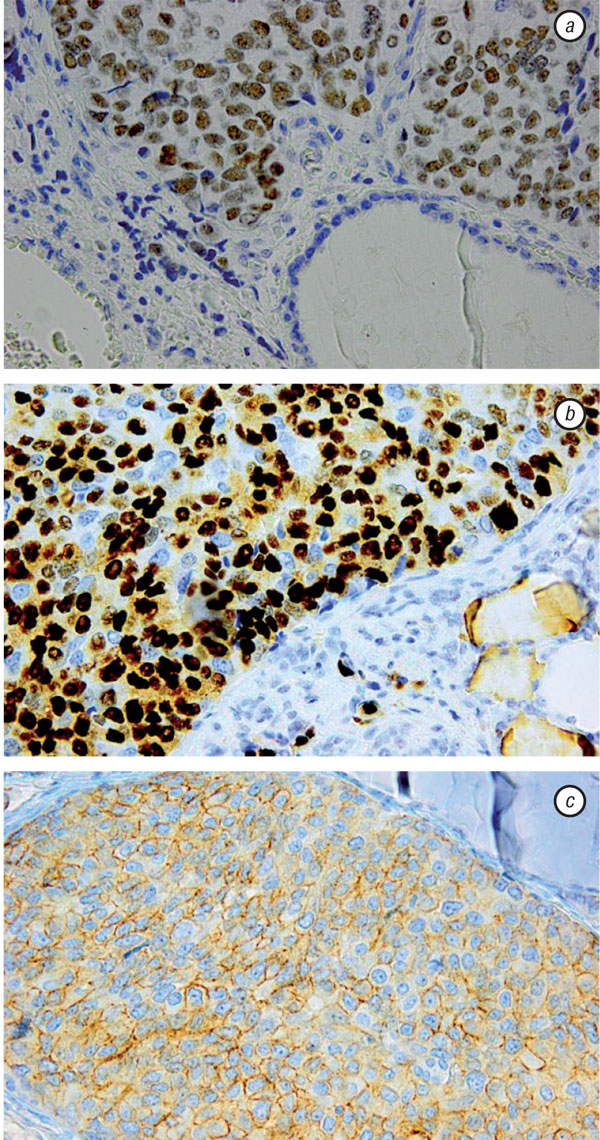 5 THYROID METASTASES FROM A BREAST CANCER DIAGNOSED BY FINE NEEDLE ASPIRATION BIOPSY. CASE REPORT AND OVERVIEW OF THE LITERATURE