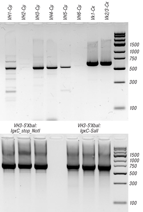 4488 3 Cloning of variable fragments of tumor immunoglobulin, assembling and expressing of human SCFV protein in E. coli for anti idiotype vaccination