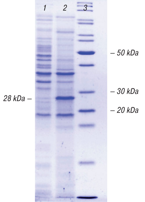 4488 5 Cloning of variable fragments of tumor immunoglobulin, assembling and expressing of human SCFV protein in E. coli for anti idiotype vaccination