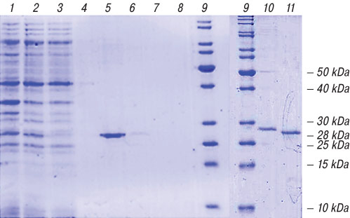 4488 6 Cloning of variable fragments of tumor immunoglobulin, assembling and expressing of human SCFV protein in E. coli for anti idiotype vaccination