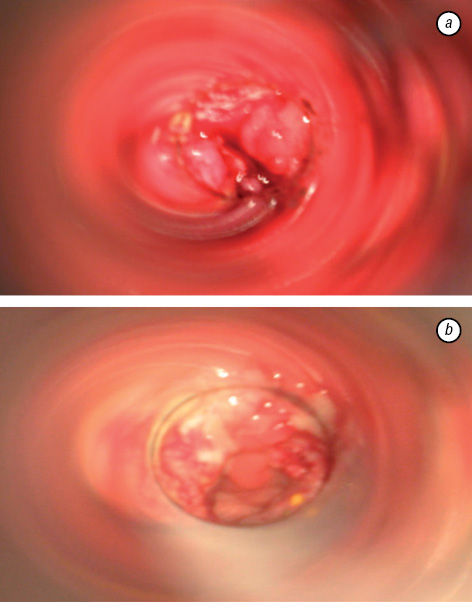 Endoscopic method of intestinal decompression with the use of entero  and colonosorption in treatment of rectal cancer complicated with intestinal obstruction