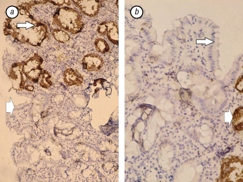 Immunohistochemical evaluation of mucin expression in precancerous tissue of stomach