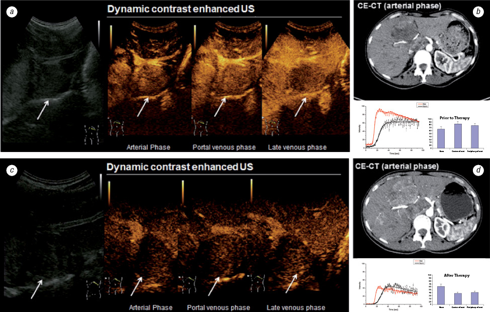 Contrast enhanced ultrasound monitoring of perfusion changes in hepatic neuroendocrine metastases after systemic versus selective arterial <sup>177</sup>Lu/<sup>90</sup>Y DOTATOC and <sup>213</sup>Bi DOTATOC radiopeptide therapy
