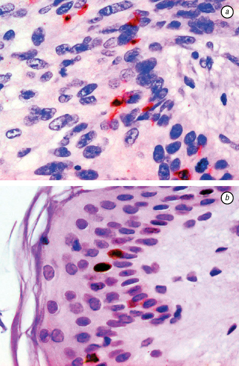 Number of  Langerhans cells is decreased in premalignant keratosis and skin cancers