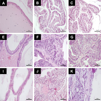 Long-term administration of prolactin or testosterone induced similar precancerous prostate lesions in rats
