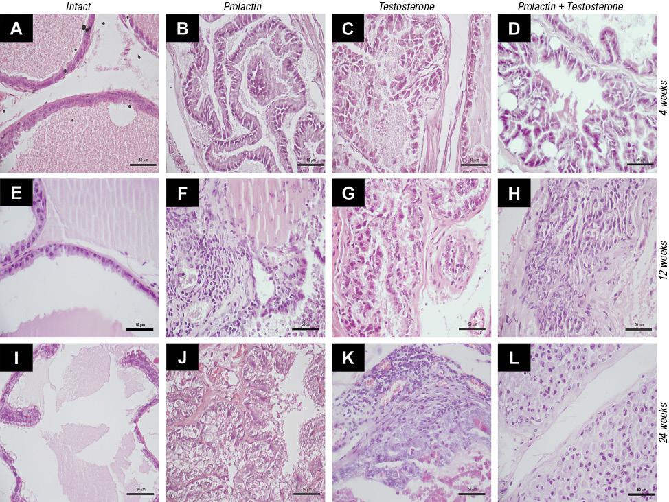 Long term administration of prolactin or testosterone induced similar precancerous prostate lesions in rats