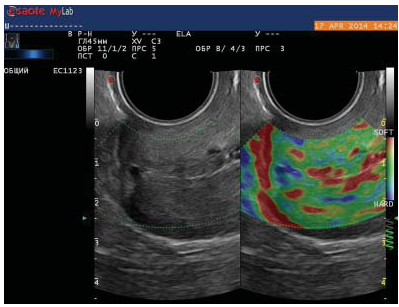 111 Use of elastography for cervical cancer diagnostics