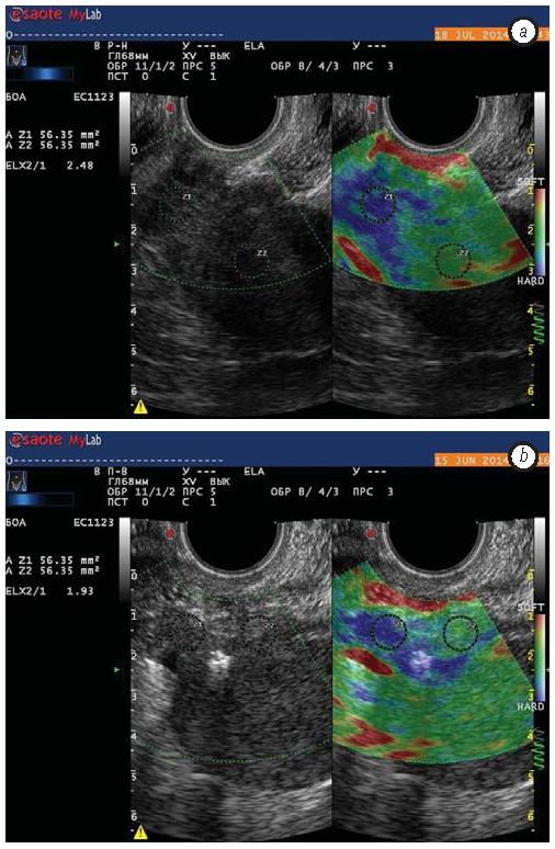 555 Use of elastography for cervical cancer diagnostics