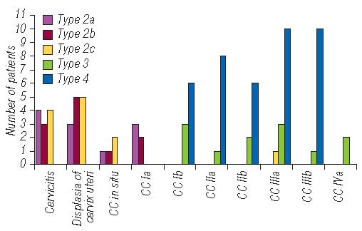 777 Use of elastography for cervical cancer diagnostics