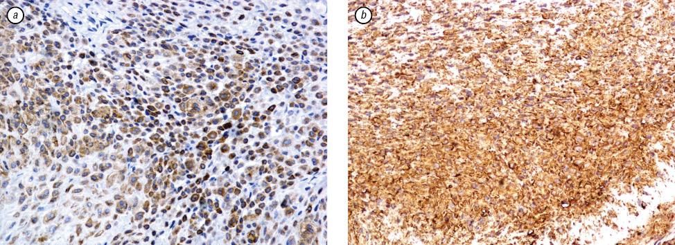 Paraganglioma like dermal melanocytic tumor: a rare skin lesion