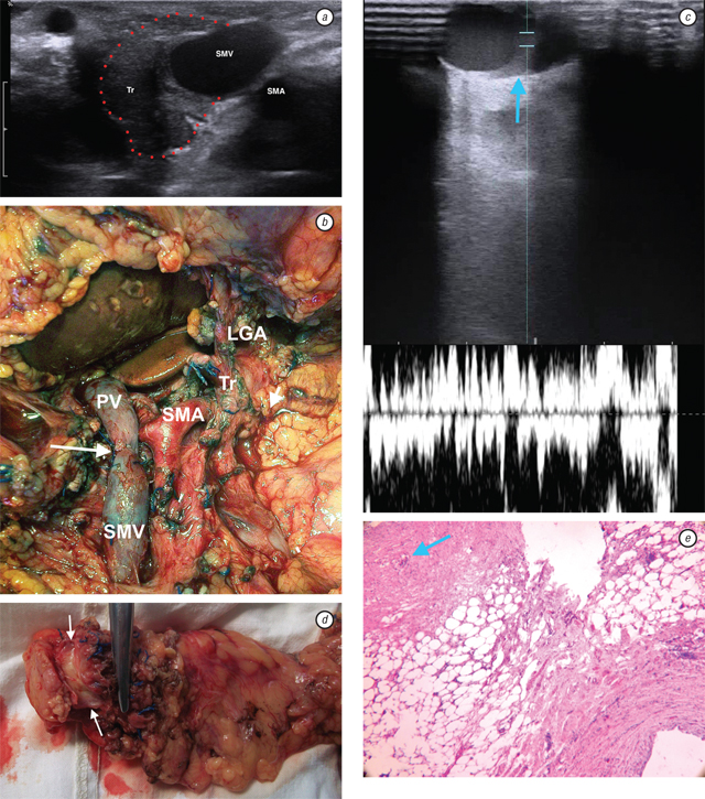 425467 Intraoperative ultrasonography in pancreatic surgery: staging and resection guidance