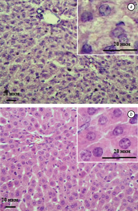 Effect of enterosorption on paraneoplastic syndrome manifestations in mice with highly angiogenic variant of lewis lung carcinoma