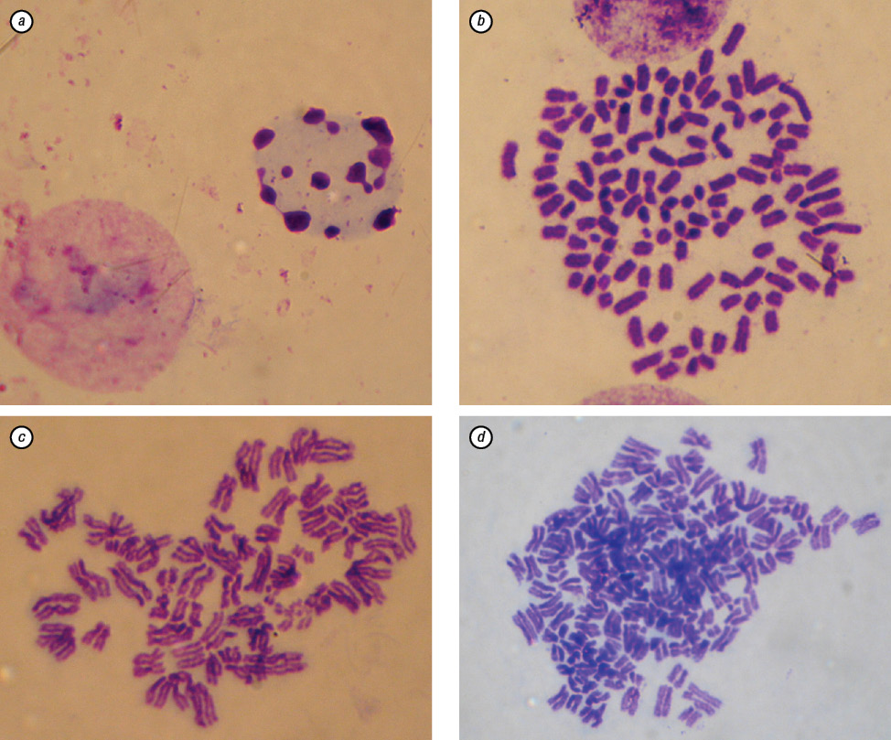 Inhibition of malignant potential and expression of proteins associated with epithelial mesenchymal transition in Lewis lung carcinoma cells transduced with murine ifn β gene in recombinant baculovirus