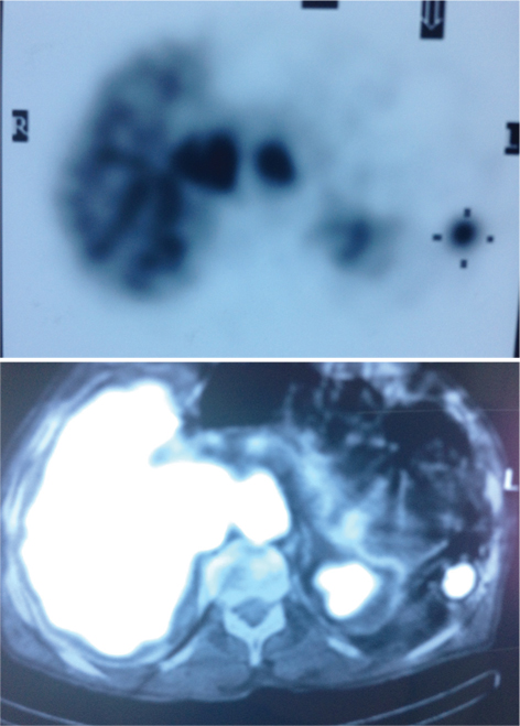 53234 Accessory spleen hypertrophy mimicking colon cancer metastasis