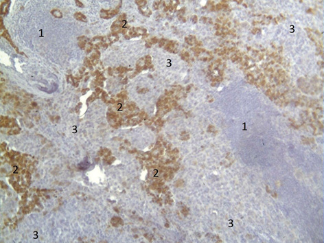 Metastasis of two malignant tumors of different genesis in axillary lymph node (a case report)
