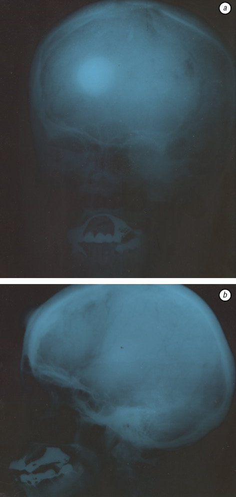 A rare clinical case of the isolated primary frontal bone osteoma