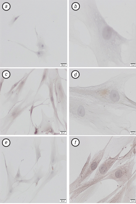 22323445 Anti cancer efficiency of natural killer cells differentiated from human adipose tissue derived mesenchymal stem cells and transfected with miRNA150