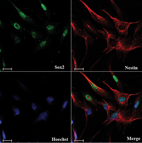 Large scale expansion and characterization of human adult neural crest derived multipotent stem cells from hair follicle for regenerative medicine applications