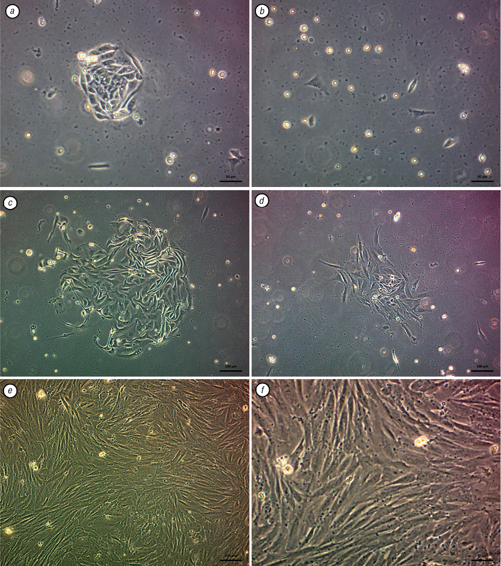 Endometrial stromal cells: isolation, expansion, morphological and functional properties