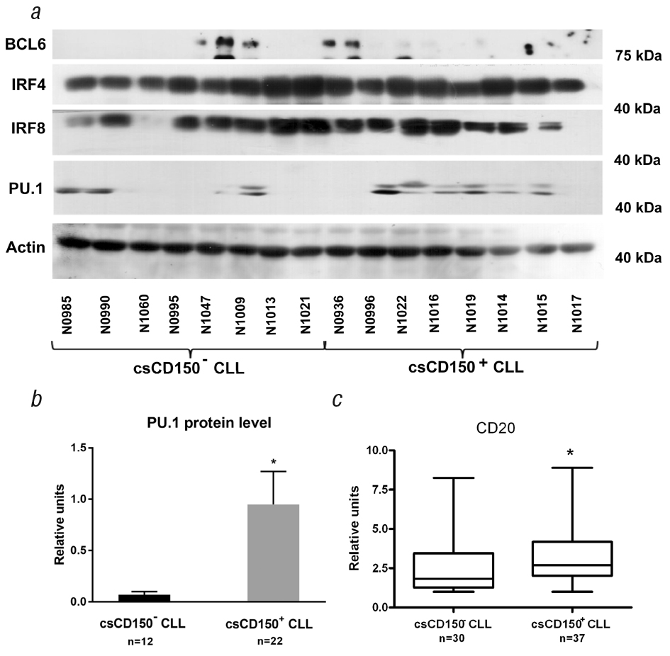 2223123131 CD150 and CD180 are involved in regulation of transcription factors expression in chronic lymphocytic leukemia cells