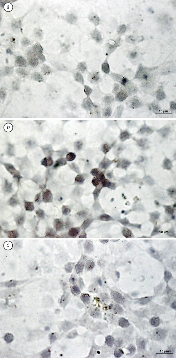 33348938 TGF β1 expression by glioma C6 cells <i>in vitro</i>