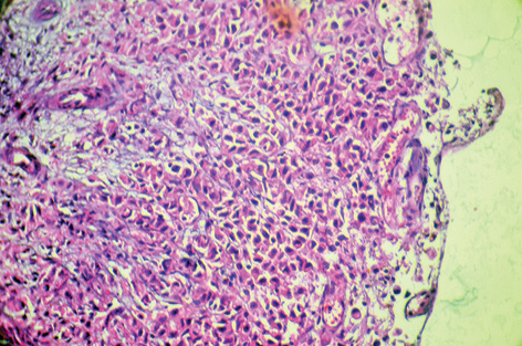 Gastric signet ring cell carcinoma with hypersecretion of β Human chorionic gonadotropin and review of the literature