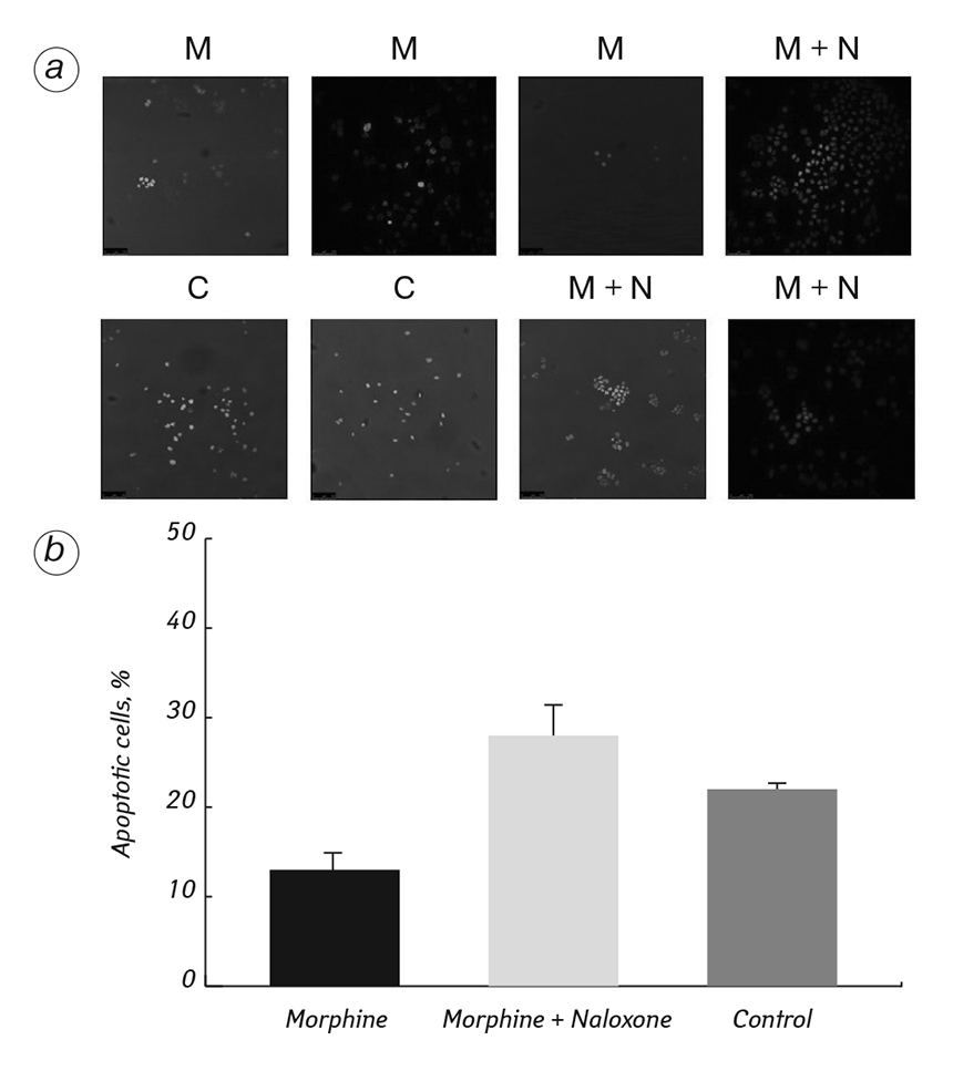 2465 fig3 The impact of morphine treatment on bladder cancer cell proliferation and apoptosis: <i>in vitro</i> studies