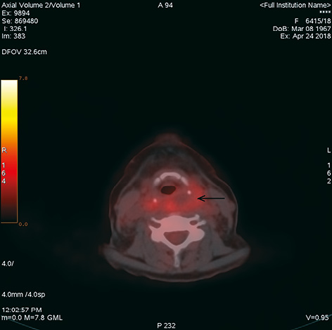 Parathyroid carcinoma: a case report