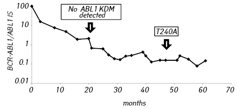 Suboptimal molecular response to tyrosine kinase inhibition associated with acquisition of a T240A <i>ABL1</i> kinase domain mutation in a patient with chronic myeloid leukemia
