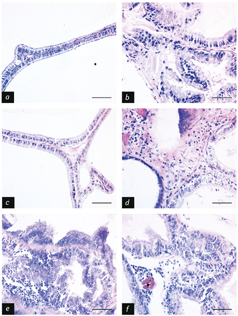 Prepuberal stress and obesity: effects on serum corticosterone, prolactin, testosterone and precancerous prostate lesions in adult rats