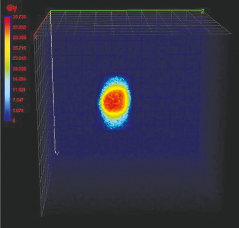 Investigation of dosimetric impact of organ motion in static and dynamic conditions for three stereotactic ablative body radiotherapy techniques: 3D conformal radiotherapy, intensity modulated radiation therapy, and volumetric modulated arc therapy by using PRESAGE 3D dosimeters