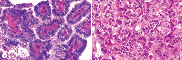 1 Histopathological characteristics and post operative follow up of patients with potentially radiogenic papillary thyroid carcinoma depending on oncocytic changes availability in the tumor cells