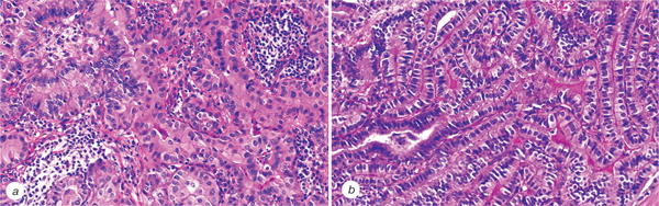 2 Histopathological characteristics and post operative follow up of patients with potentially radiogenic papillary thyroid carcinoma depending on oncocytic changes availability in the tumor cells