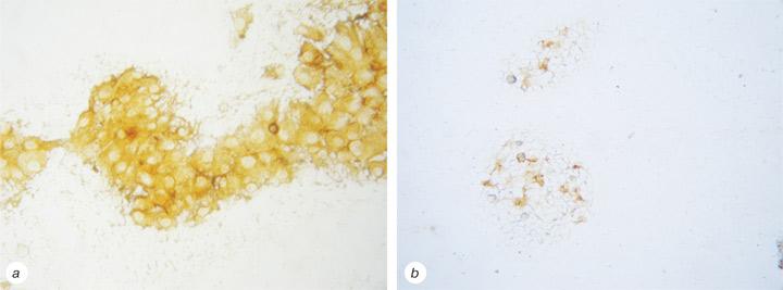 22 Immunocytochemical characteristics ofthyrocytes in radioiodine refractory metastases ofpapillary thyroid cancer