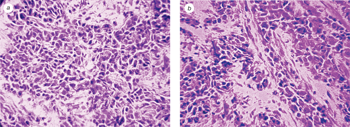 66 Morphological characteristics and expression of adhesion markers in cells of low differentiated endometrial carcinoma