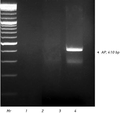 Aberrant expression of placental like alkaline phosphatase in chronic myeloid leukemia cells <i>in vitro</i> and its modulation by vitamin E