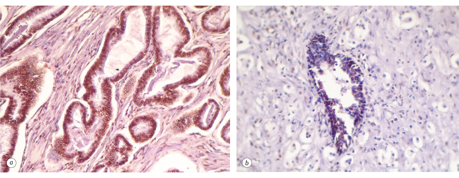 547547547456546456 NANOG as prognostic factor of prostate cancer course