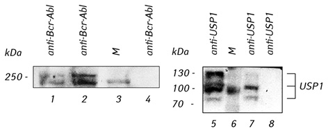 Inhibition of USP1, a new partner of Bcr Abl, results in decrease of Bcr Abl level in K562 cells