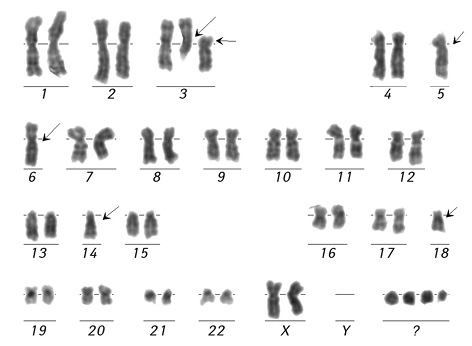 Peculiarities of abnormal karyotypes formation in therapy related acute leukemias