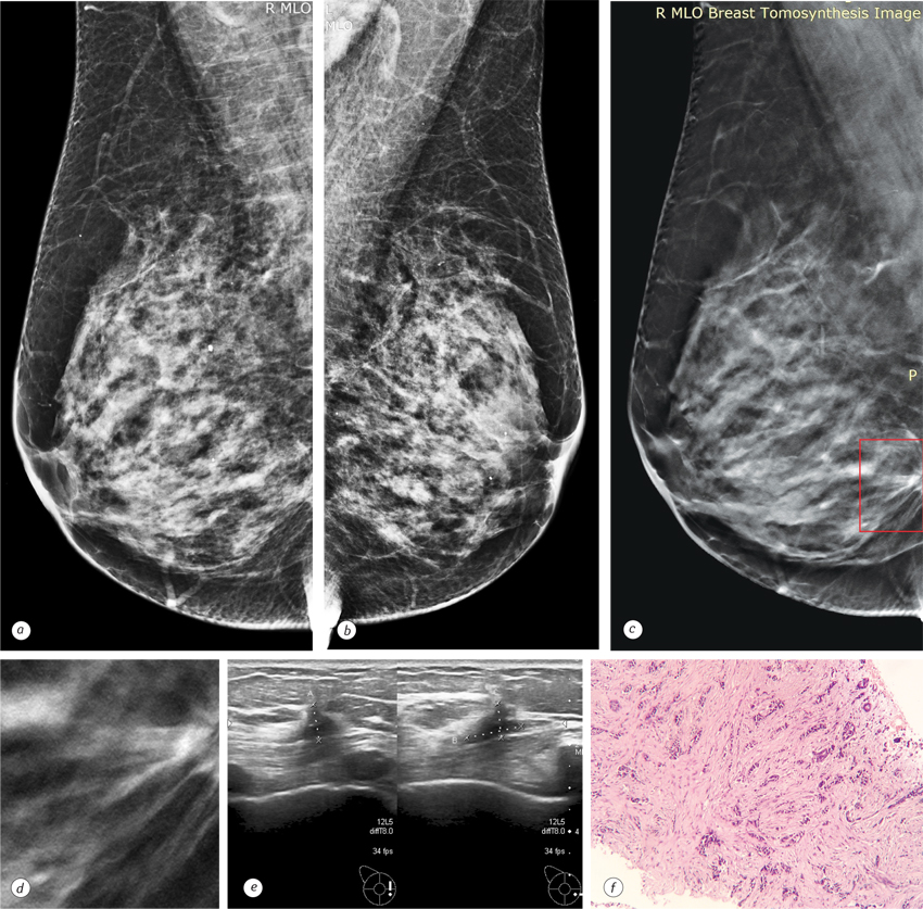 346346346346346346346 Detection of breast cancer presenting as a mass in women with dense breasts — digital breast tomosynthesis versus full field digital mammography