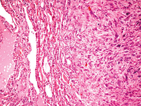 Thyroid metastasis of vaginal leiomyosarcoma: a case report and review of the literature