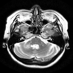 Progressive multifocal encephalopathy in a patient with non Hodgkin follicular lymphoma