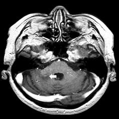 Progressive multifocal encephalopathy in a patient with non Hodgkin follicular lymphoma