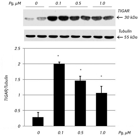 Plasminogen/plasmin affects expression of glycolysis regulator TIGAR and induces autophagy in lung adenocarcinoma A549 cells