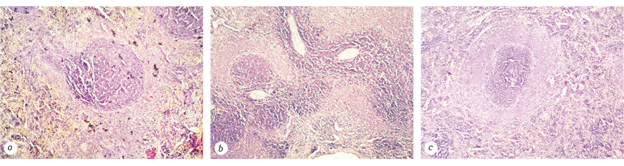 679769796679679679 Comparative study of biochemical and morphological parameters in rats with Walker 256 and Walker 256/DOX carcinosarcoma