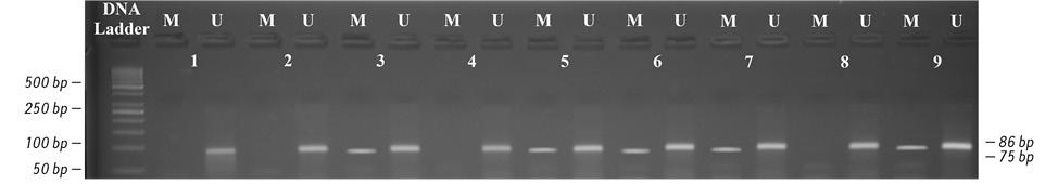 Prevalence of <i>BRCA1</i> and <i>BRCA2</i> genes promoter hypermethylation in breast cancer tissue
