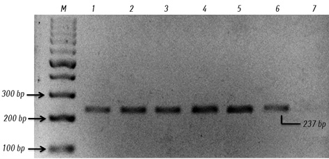 Significance of <i>BRAF</i><sup>V600E</sup> mutation in intra axial brain tumor in Malaysian patients: case series and literature review